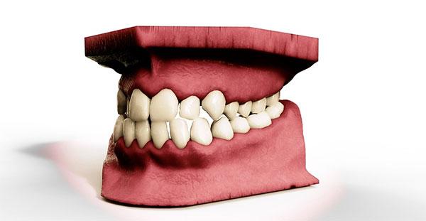 granuloma dentale come si cura