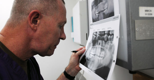 granuloma dentale devitalizzazione