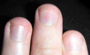 unghia incarnita come curare rimedi naturali