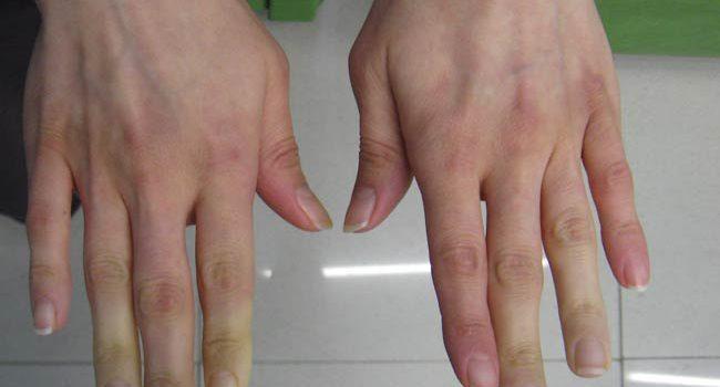 La sindrome di Sjogren che cosa fare