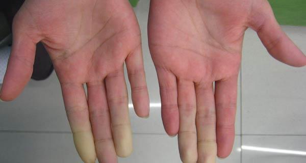 Sindrome di Sjogren cosa fare